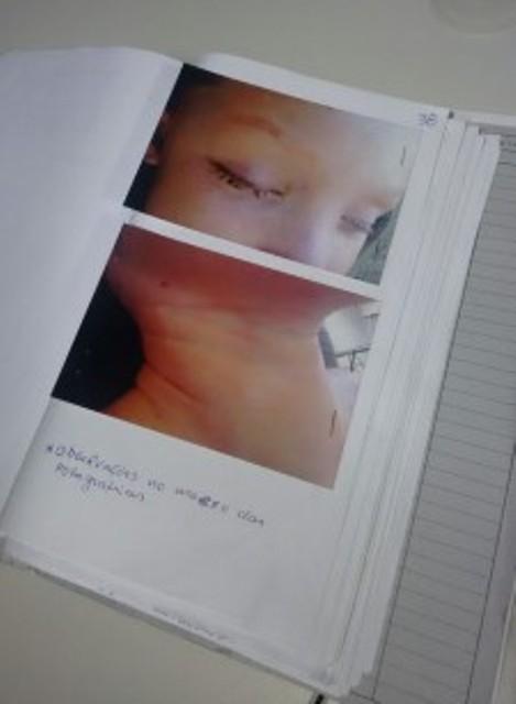 Marcas no pescoço da menina mostram que ela foi esganada. Fotos tiradas no IML foram divulgadas pela polícia